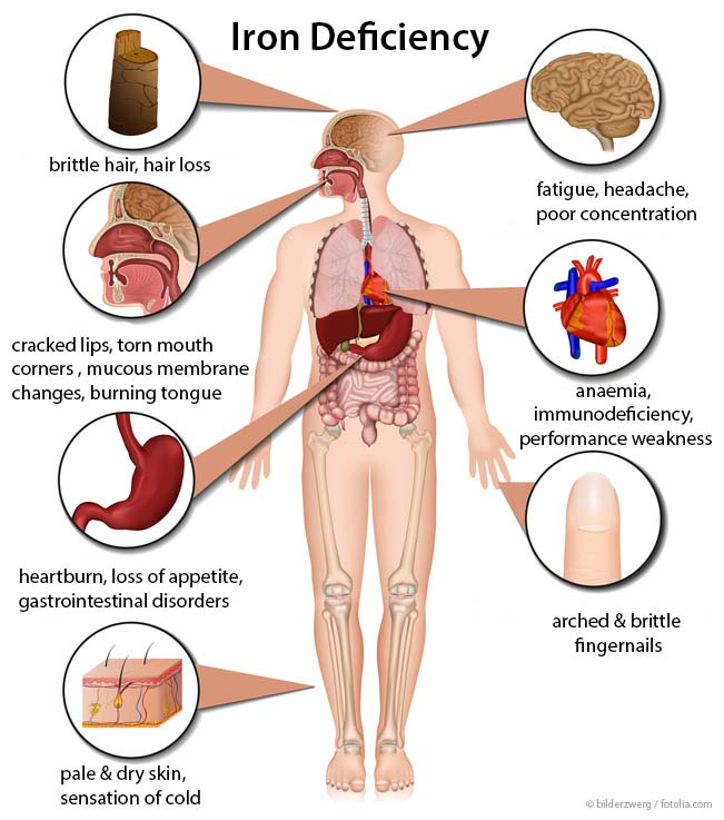 Iron deficiency in humans. Adapted from © bilderzwerg /fotolia.com