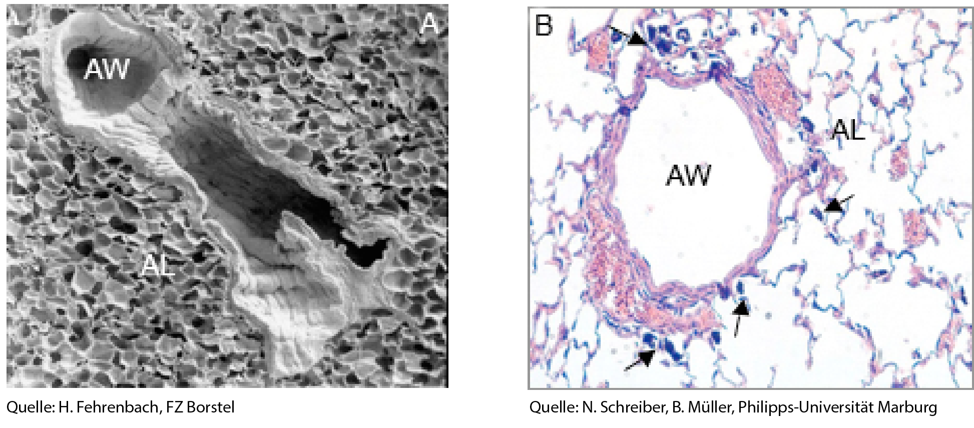 Images of the lung taken with (A) a Scanning Electron Microscope or (B) light microscope showing the airways (AW) and surrounding alveoli (AL). Arrows indicate inhaled agglomerates of carbon black nanoparticles (CBNP).