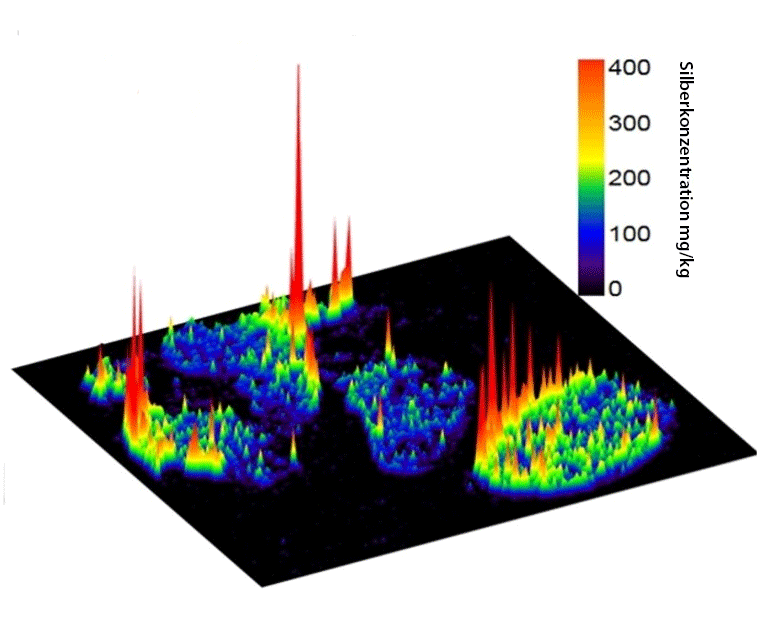 Three-dimensional image showing the local distribution of silver in lymph nodes