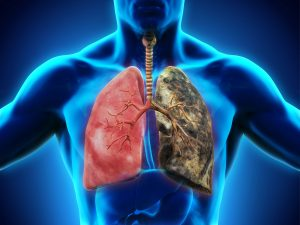 Healthy Lung and Smokers Lung © nerthuz - stock.adobe.com